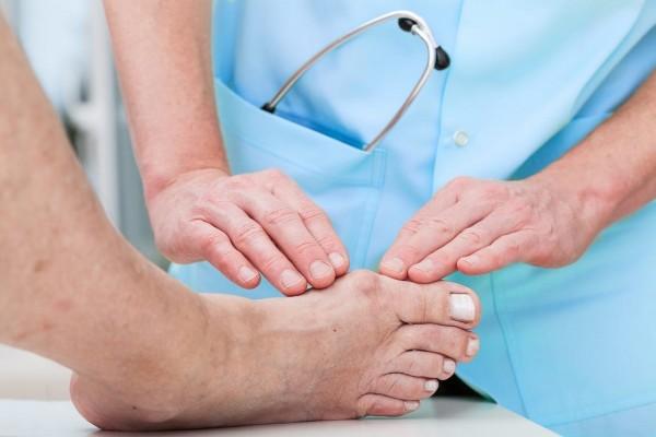 Guta: simptome, cauze, preventie si tratament